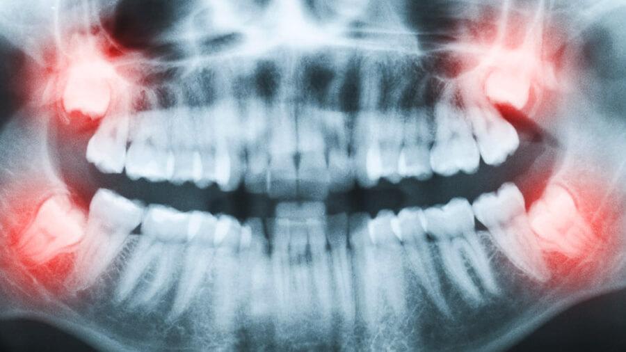Röntgenbild von Weisheitszähnen