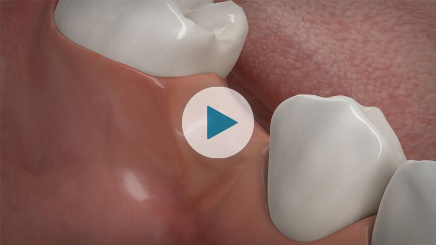 Knochenaufbau und Implantate